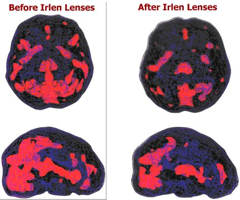 pattern glare dyslexia help with specialized irlens glasses a community