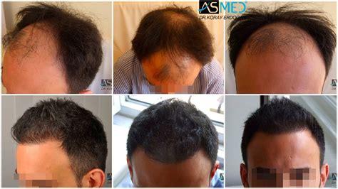 Fue Hair Transplant Reviews   fue hair transplant reviews