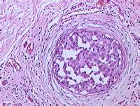 latest dcis breast cancer news and research dcis mystory breast biopsy uncertainties for dcis and atypia