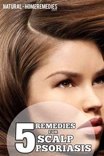 scalp psoriasis home remedies 5 best and effective ways for scalp psoriasis treatments