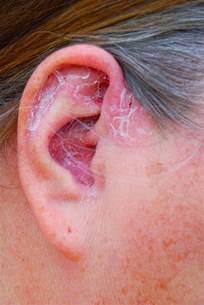 psoriasis causes the top 3 reasons develop psoriasis