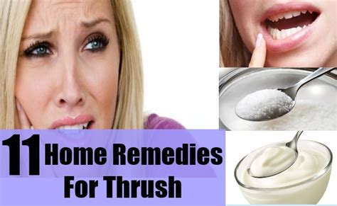 effective home remedies for thrush remedy