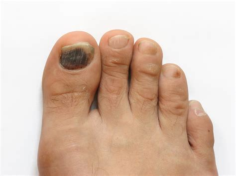 my bid my toenail turned black after an injury what should i do