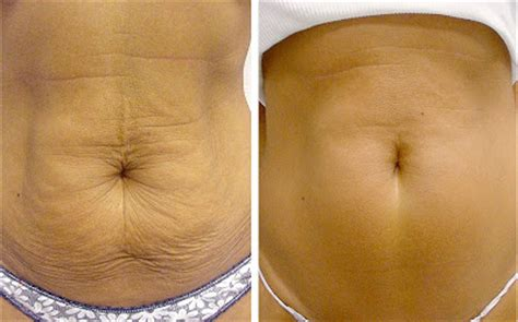 personal health care 5 methods for tightening the skin around the stomach