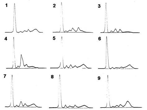 s protein electrophoresis interpretation drill of interpretation of serum protein electrophoretic