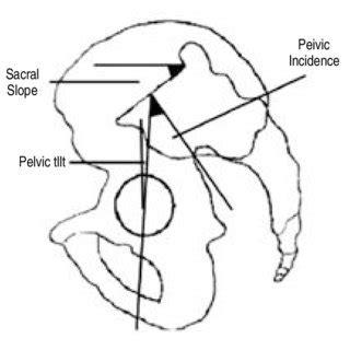 method  measuring pelvic tilt  pelvic incidence  scientific diagram