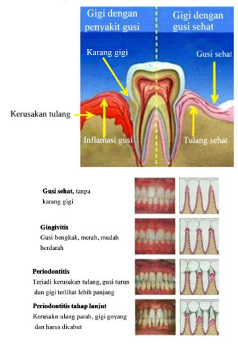 Pembersihan Karang Gigi Di Dental proses scaling pembersihan karang gigi sir ossiris home site