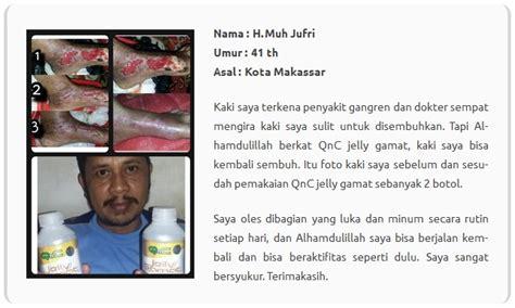 Qnc Jelly Gamat Nganjuk luka diabetes bisa sembuh buktikan sendiri khasiatnya