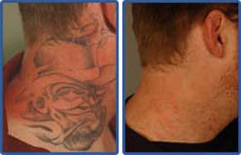 tattoo removal ta fl get rid of tattoos