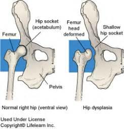 hip dysplasia home treatment canine hip dysplasia hip dysplasia in dogs penn hip in