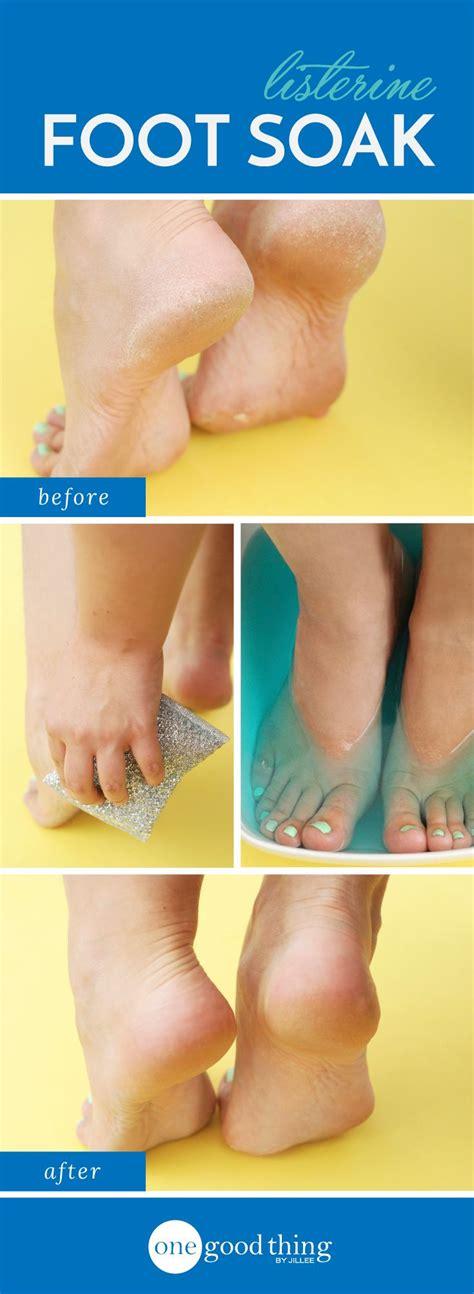 Foot Bath Detox Listerine by Best 25 Foot Soak Vinegar Ideas On Soak