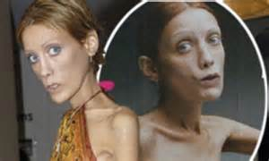 anorexic models that died anorexic models that died pictures to pin on