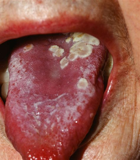 Herpes On Tongue Pictures