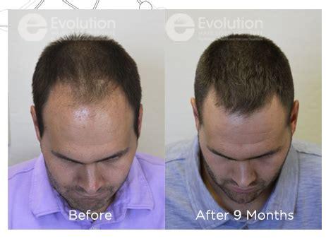 best hair loss shoo for men mens hair loss treatment