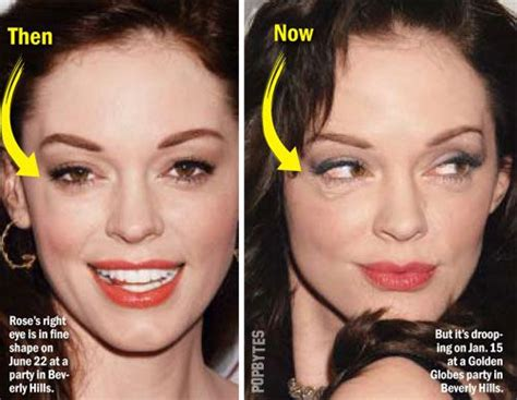 rose mcgowan plastic surgery gone wrong before amp after pics