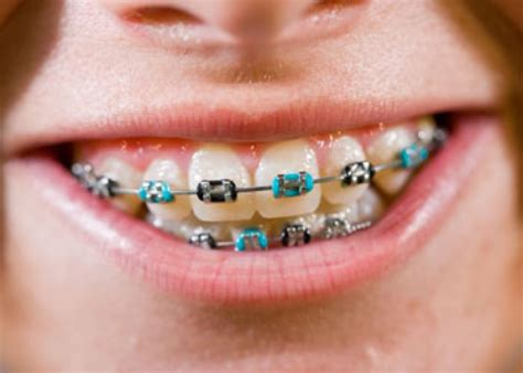 what color should i get my braces choosing colours for your braces heights orthodontics