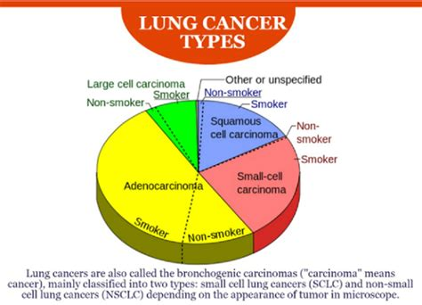 types of cancer pictures types of lung cancer images