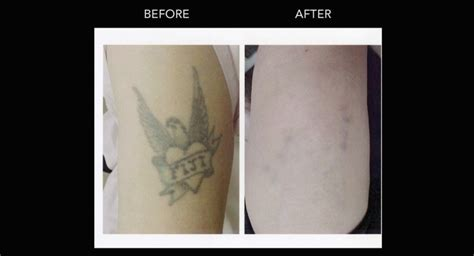 tattoo removal kelowna laser removal in kelowna with dr crippen dermmedica