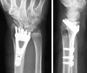 New York Injury Cases Blog   Medical Malpractice Law ... Fractured Wrist Treatment