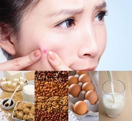 Sabun Muka Vaseline Untuk Wanita jerawat pada kulit kering penyebab cara merawat dan