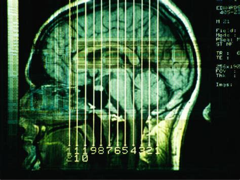 May Had A Brain by Scans Show Liberals Conservatives Different Brain