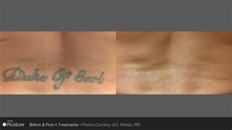 tattoo removal on black skin laser ink picosure laser removal specialists