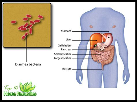 Stomach Crs Diarrhea Nausea Blood In Stool by Home Remedies For Diarrhea Top 10 Home Remedies