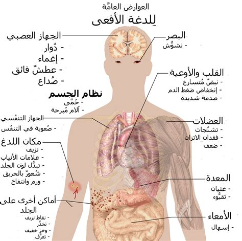 snake bite symptoms file snake bite symptoms ar png wikimedia commons