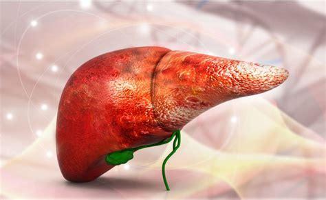 alimentazione calcoli biliari come depurare il fegato e prevenire i calcoli biliari