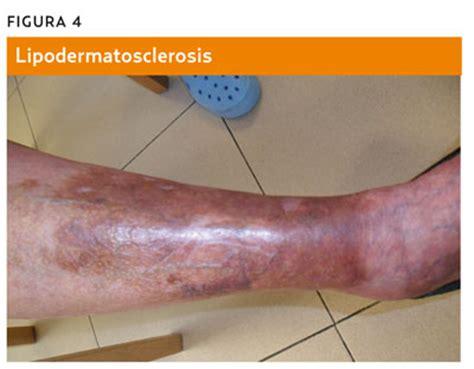 imagenes de manchas oscuras en las piernas s 237 ndrome posfleb 237 tico enfermedad posfleb 237 tica enfermedad