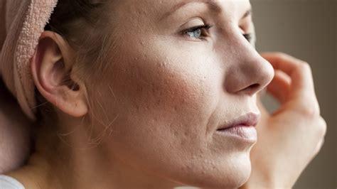 Acne Gel Lamour acn 233 d adulte 5 bons produits 224 essayer pour s en