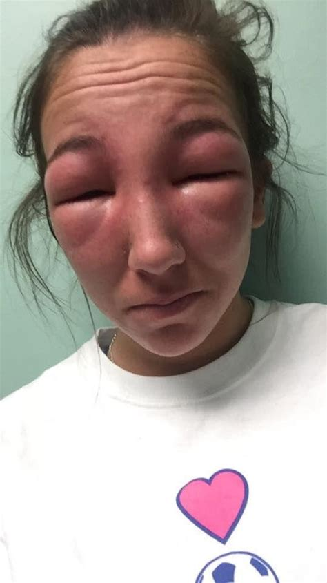 Girl Has Awful Allergic Reaction To Poison Ivy 2 Pics