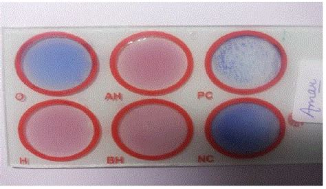 widal wright test comparison of widal test with immunochromatography and