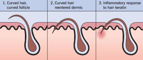 how to get rid of ingrown pubic hair 15 steps with pictures how to get rid of ingrown hairs