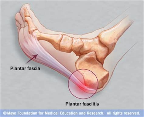 Planter Facia by Heel And Stiffness It May Be Plantar Fasciitis