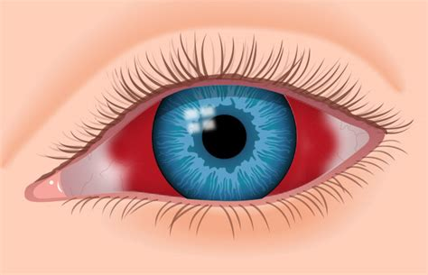 blood in s eye image gallery eye hemorrhage