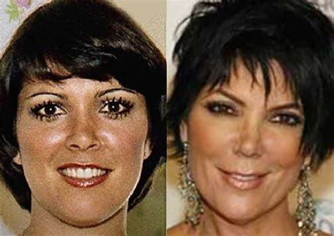 kris jenner what has happened to her face celebgoose kris jenner plastic surgery