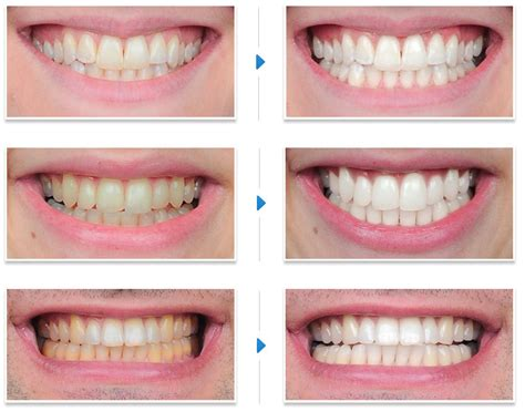 7 Reasons To Get Your Teeth Whitening Procedure Done By A Pro by Finding The Best Teeth Whitening Dallas Has To Offer