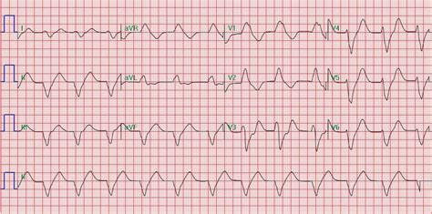pattern recognition ecg recognition and treatment of potentially fatal