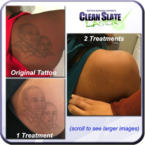 clean slate tattoo removal can removal be done safely on darker skin clean