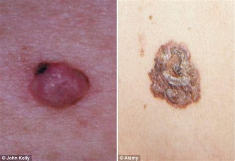 melanoma in testa quot sembra brufolo ma 232 un tumore quot dermatologi allarme