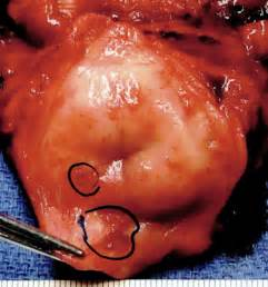 hypodense hpv cervix of cervix prolapse operation
