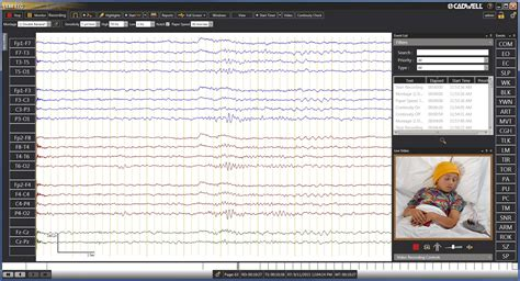Eeg Report Template