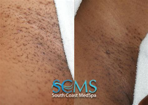 laser hair removal on tattoo line scars www pixshark images galleries