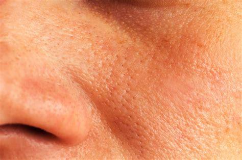 pores on human skin macro up of caucasian skin with holls stock photo royalty free image how to treat seborrheic dermatitis