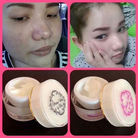 aura baby white skin by princess skin care thailand best selling products