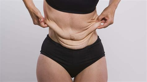 weight loss in weight loss get real about their skin