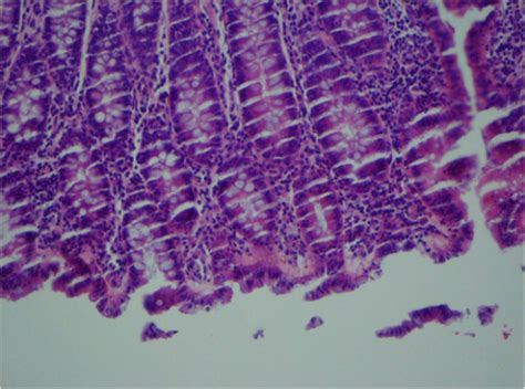 section cutting in histopathology microtomy artifacts causes and corrections labce com