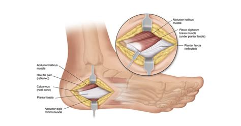 plantar fasciitis surgery recovery info heel that pain