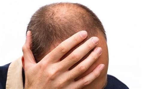 rapid hair loss male pattern baldness emu oil for fast hair growth my ultimate guide